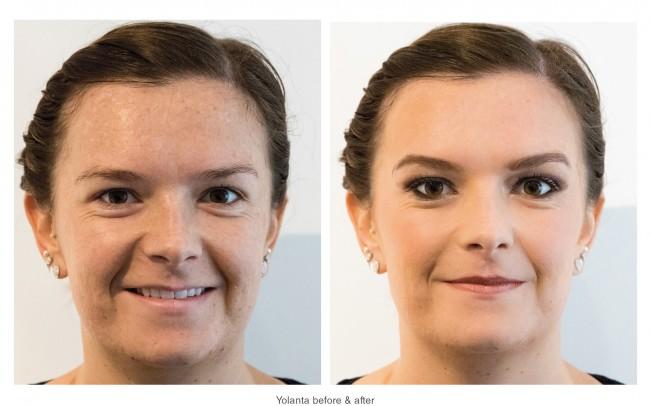 Yolanta before & after